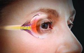 Cataract Treatment in Delhi