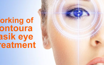 Lasik Eye Treatment